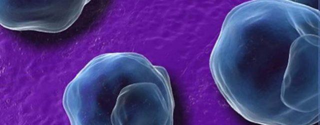 Cercetatorii au facut progrese in dezvoltarea primului vaccin pentru Chlamydia, dupa ce au identificat un antigen care reduce simptomele cauzate de bacteria Chlamydia Trachomatis. Chlamydia este una dintre cele mai […]